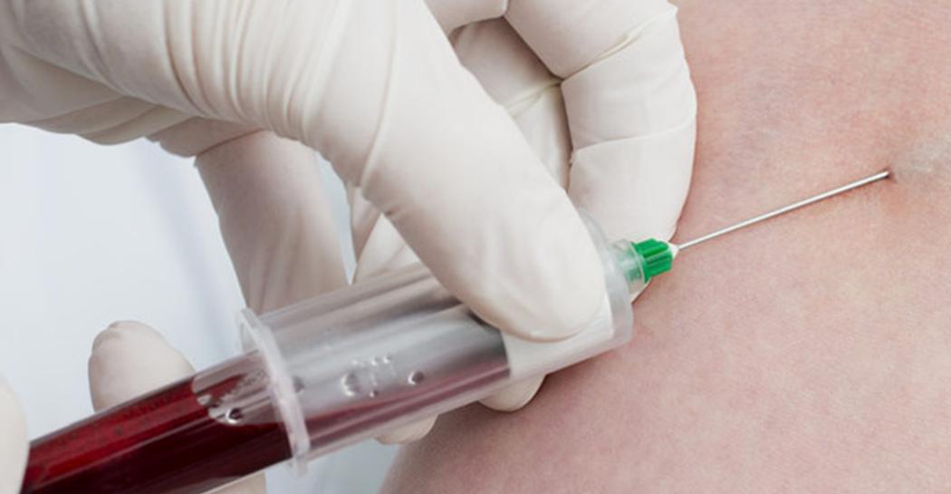 Odrabianie krwiodawstwa